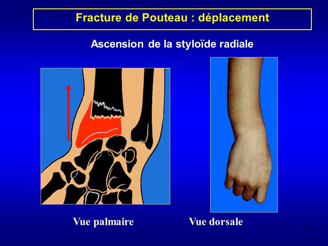 179 Fracture de Pouteau : déplacement Vue palmaireVue dorsale Ascension de la styloïde radiale