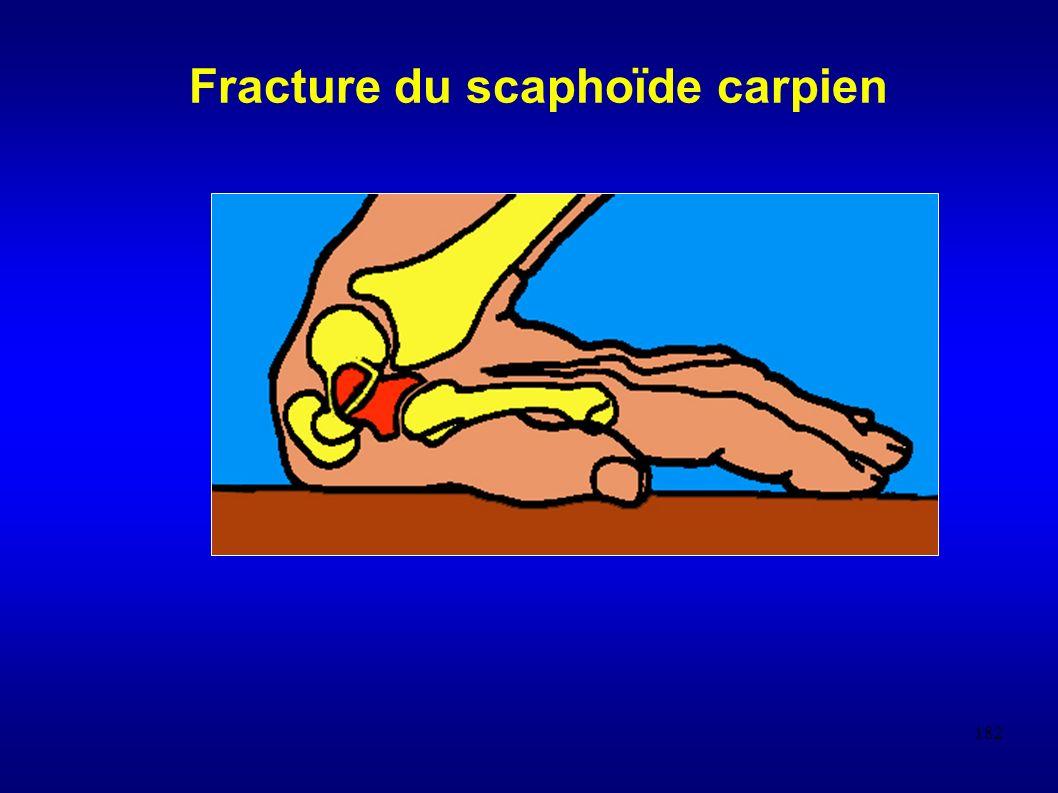 182 Fracture du scaphoïde carpien