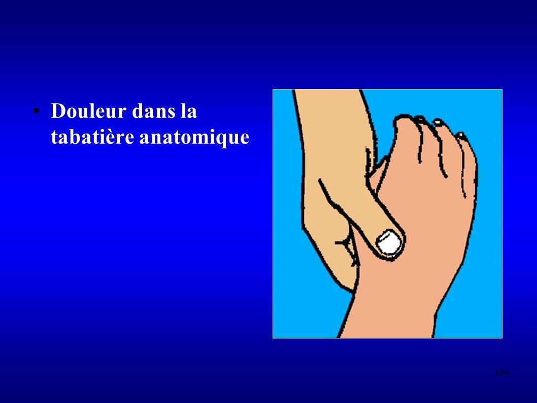 184 Douleur dans la tabatière anatomique