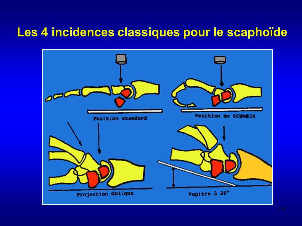 185 Les 4 incidences classiques pour le scaphoïde