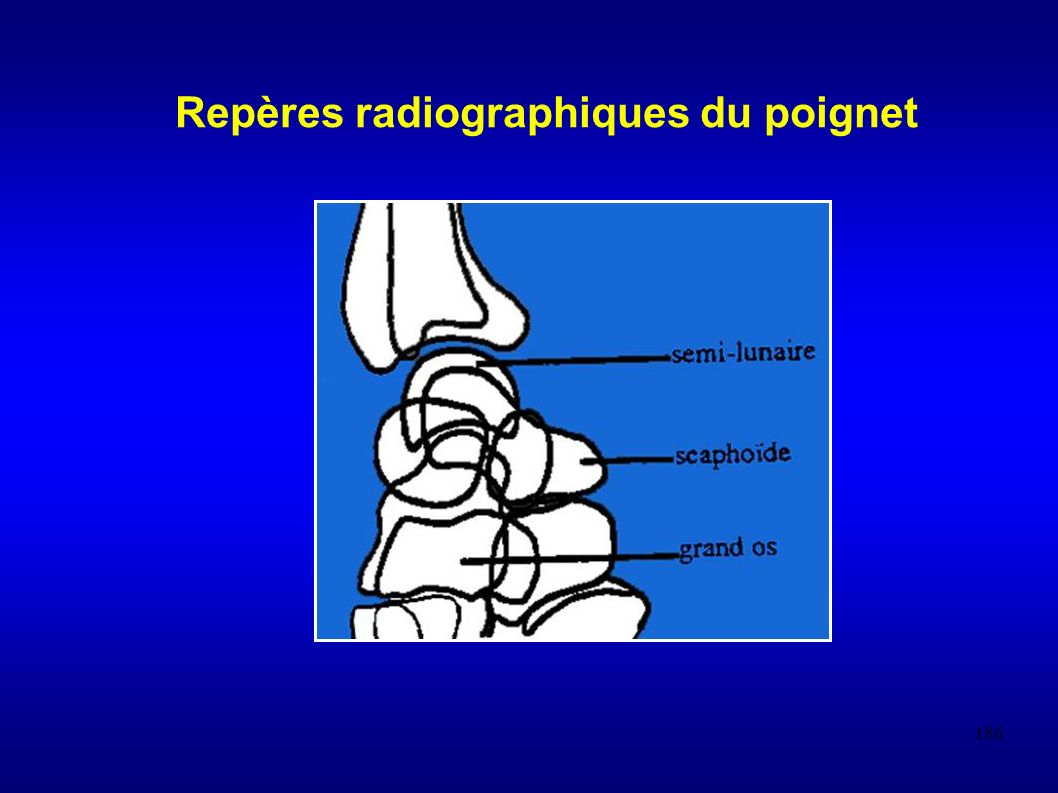 186 Repères radiographiques du poignet