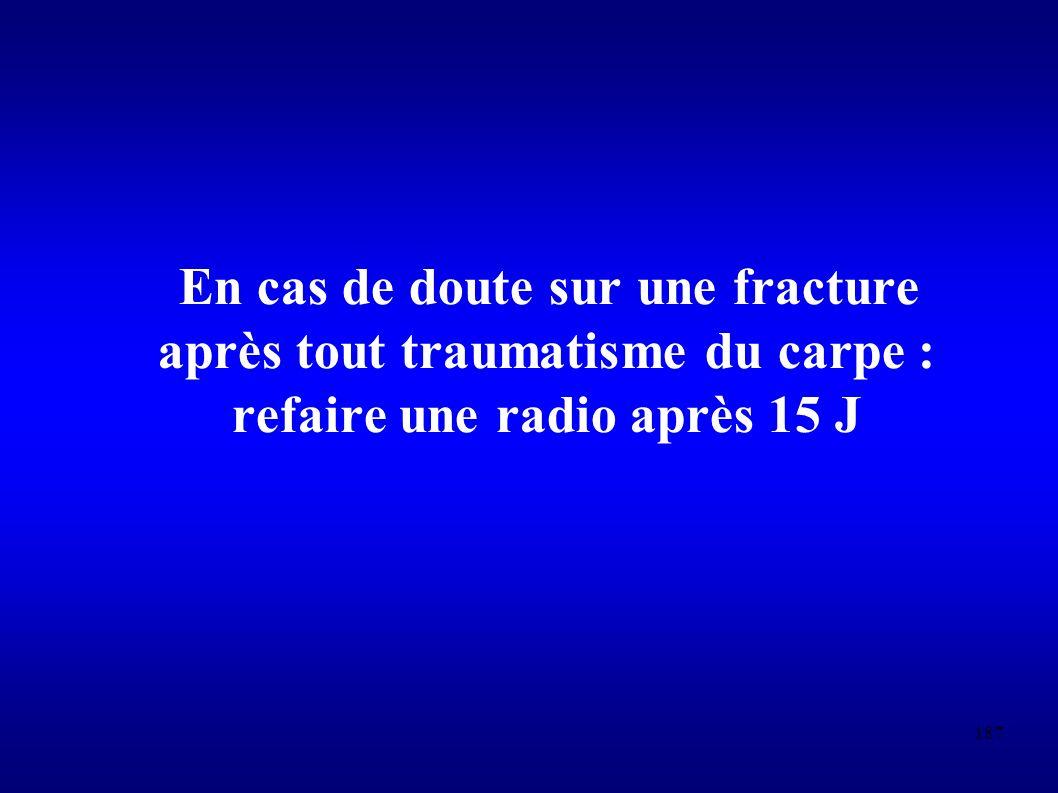 187 En cas de doute sur une fracture après tout traumatisme du carpe : refaire une radio après 15 J