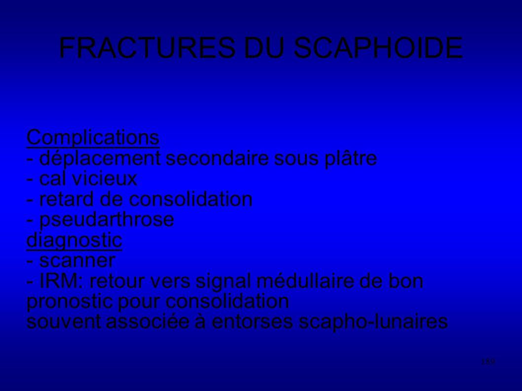 189 FRACTURES DU SCAPHOIDE Complications - déplacement secondaire sous plâtre - cal vicieux - retard de consolidation - pseudarthrose diagnostic - scanner - IRM: retour vers signal médullaire de bon pronostic pour consolidation souvent associée à entorses scapho-lunaires