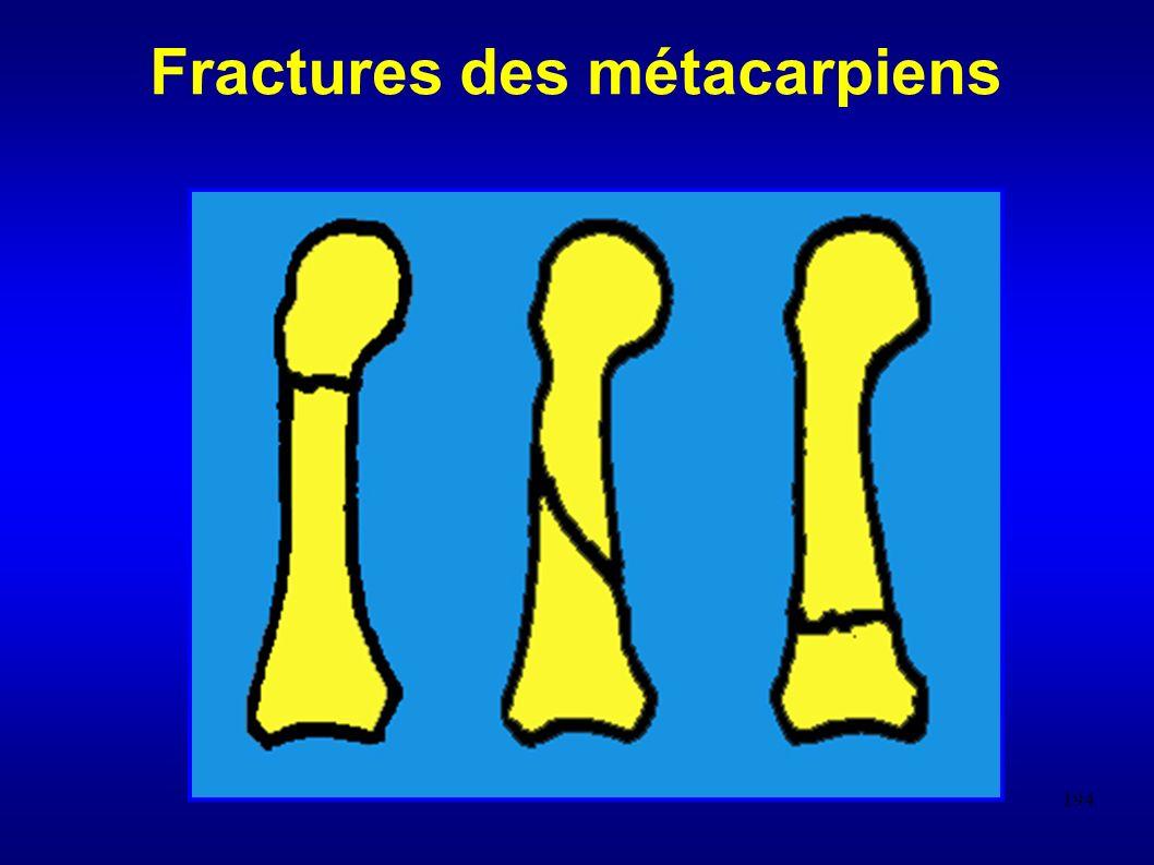 194 Fractures des métacarpiens