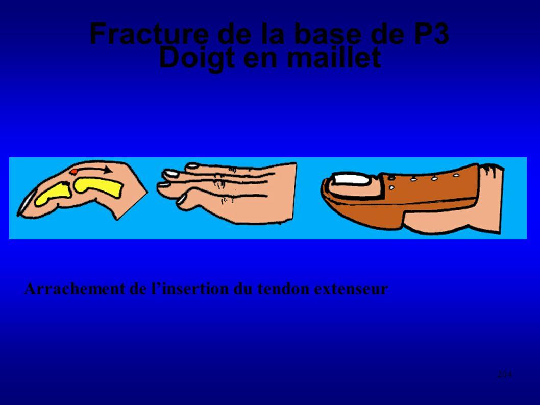 204 Fracture de la base de P3 Doigt en maillet Arrachement de linsertion du tendon extenseur