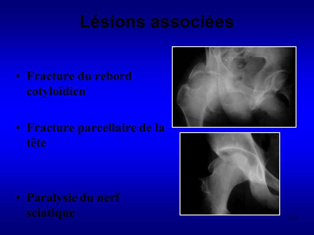 213 Lésions associées Fracture du rebord cotyloïdien Fracture parcellaire de la tête Paralysie du nerf sciatique