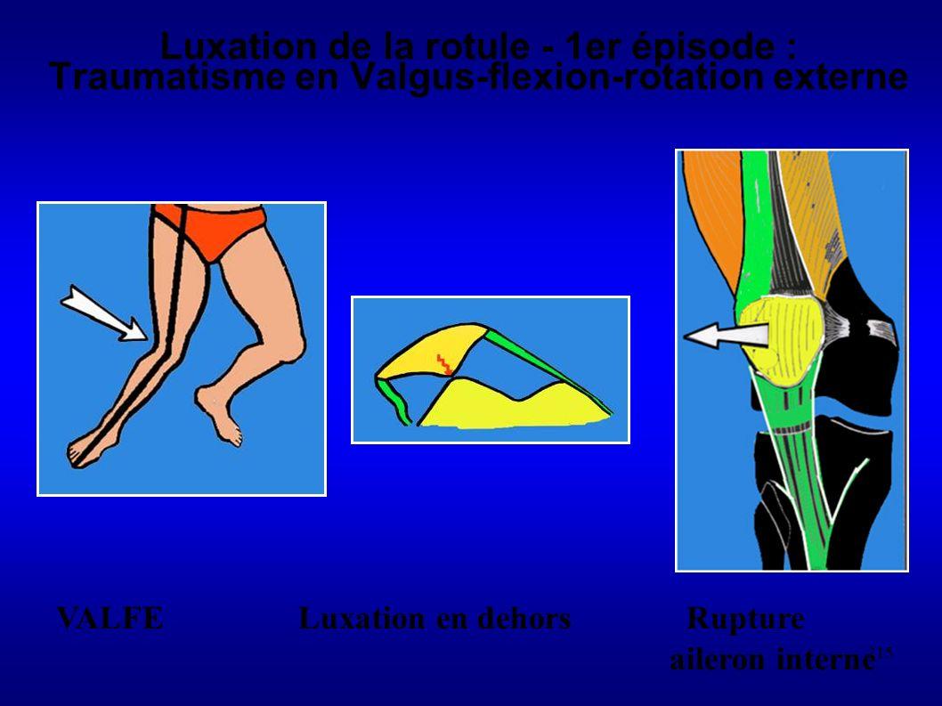 215 Luxation de la rotule - 1er épisode : Traumatisme en Valgus-flexion-rotation externe VALFE Luxation en dehors Rupture aileron interne
