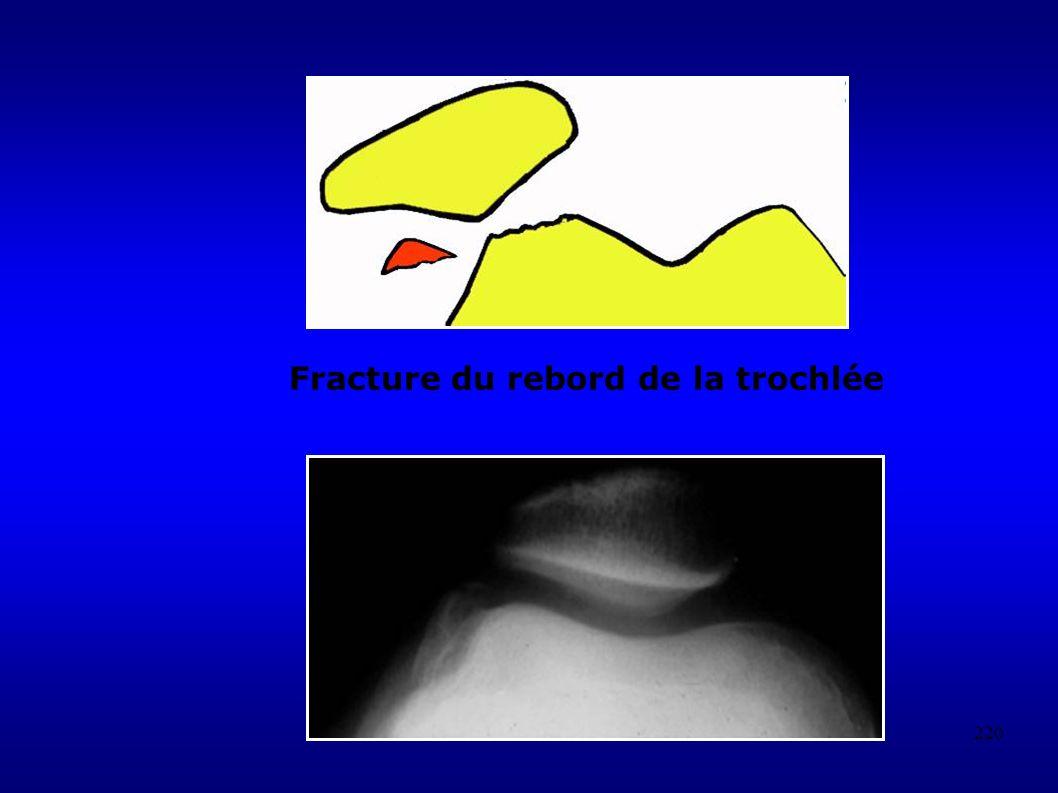 220 Fracture du rebord de la trochlée