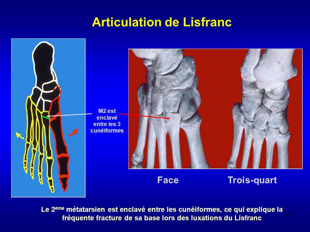 223 M2 est enclavé entre les 3 cunéiformes Face Trois-quart Articulation de Lisfranc Le 2 ème métatarsien est enclavé entre les cunéiformes, ce qui explique la fréquente fracture de sa base lors des luxations du Lisfranc