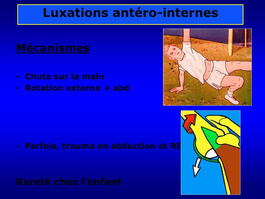 231 Luxations antéro-internes Mécanismes Chute sur la main Rotation externe + abd Parfois, trauma en abduction et RE Rareté chez lenfant