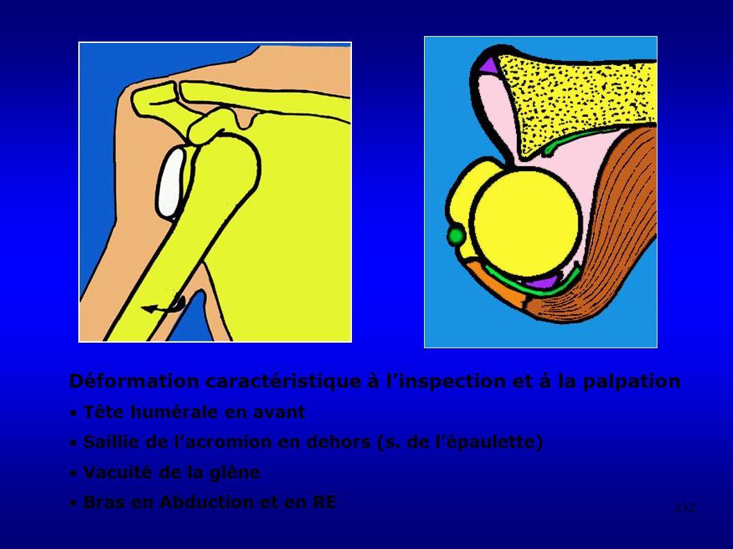232 Déformation caractéristique à linspection et à la palpation Tête humérale en avant Saillie de lacromion en dehors (s.