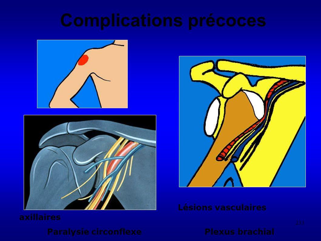 233 Complications précoces Lésions vasculaires axillaires Paralysie circonflexe Plexus brachial