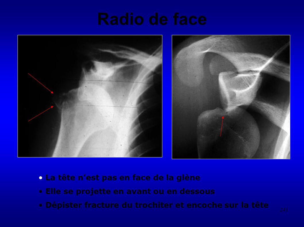 241 Radio de face La tête nest pas en face de la glène Elle se projette en avant ou en dessous Dépister fracture du trochiter et encoche sur la tête