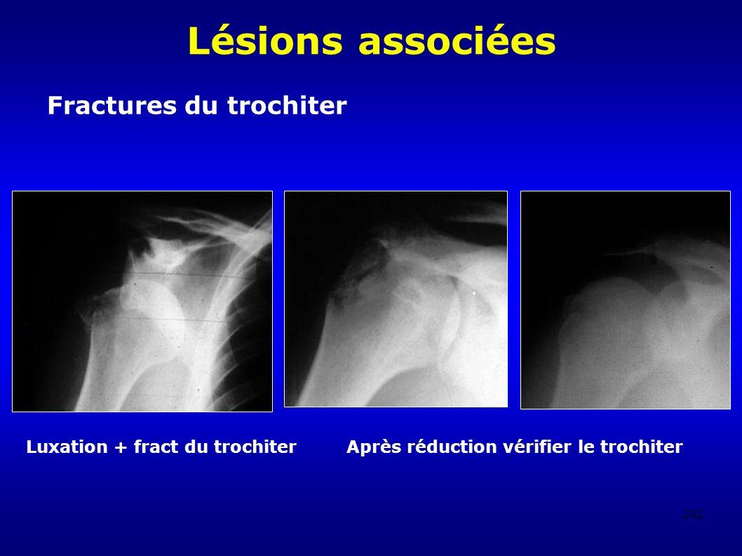 242 Lésions associées Fractures du trochiter Luxation + fract du trochiter Après réduction vérifier le trochiter