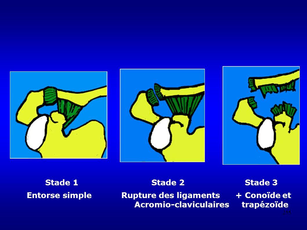 255 Stade 1 Stade 2 Stade 3 Entorse simple Rupture des ligaments + Conoïde et Acromio-claviculaires trapézoïde