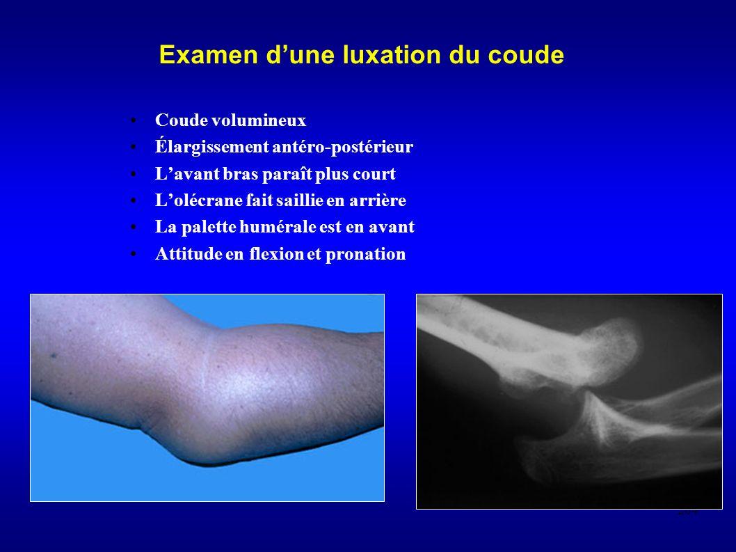 264 Examen dune luxation du coude Coude volumineux Élargissement antéro-postérieur Lavant bras paraît plus court Lolécrane fait saillie en arrière La palette humérale est en avant Attitude en flexion et pronation