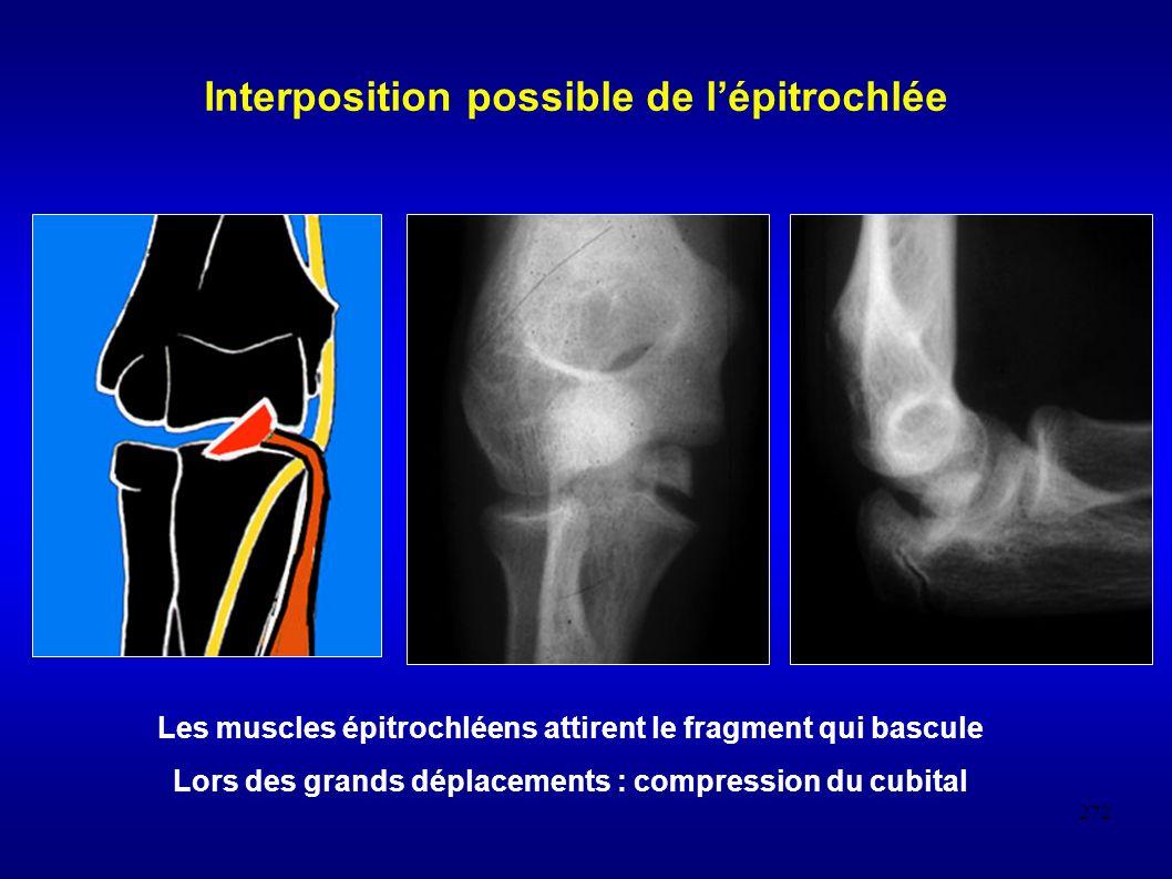 272 Interposition possible de lépitrochlée Les muscles épitrochléens attirent le fragment qui bascule Lors des grands déplacements : compression du cubital