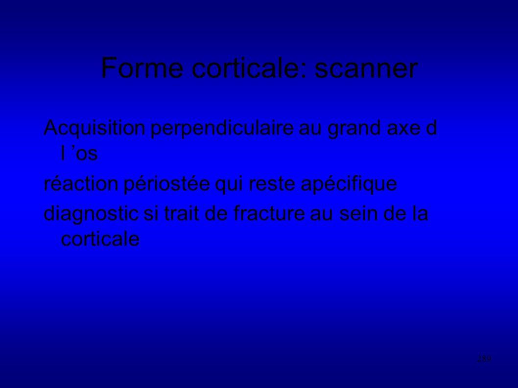 289 Forme corticale: scanner Acquisition perpendiculaire au grand axe d l os réaction périostée qui reste apécifique diagnostic si trait de fracture au sein de la corticale