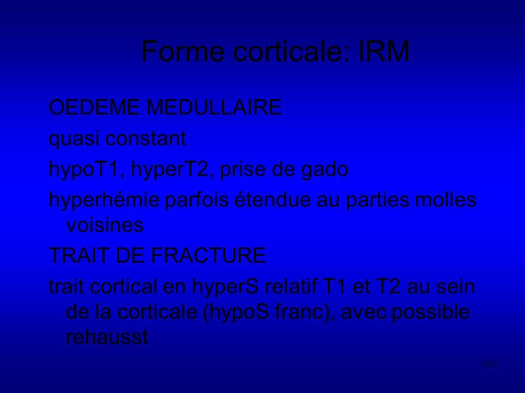 292 Forme corticale: IRM OEDEME MEDULLAIRE quasi constant hypoT1, hyperT2, prise de gado hyperhémie parfois étendue au parties molles voisines TRAIT DE FRACTURE trait cortical en hyperS relatif T1 et T2 au sein de la corticale (hypoS franc), avec possible rehausst