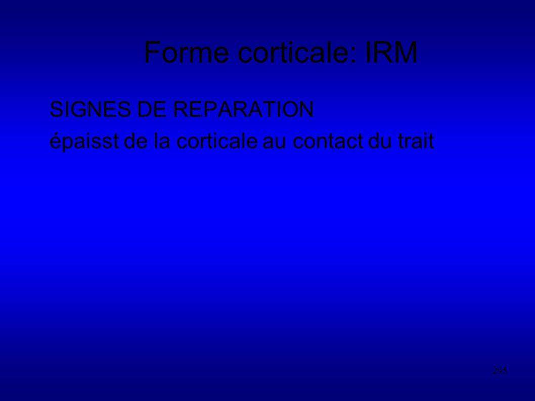 295 Forme corticale: IRM SIGNES DE REPARATION épaisst de la corticale au contact du trait