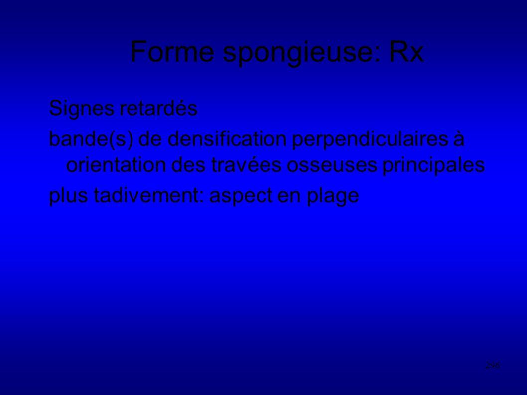 296 Forme spongieuse: Rx Signes retardés bande(s) de densification perpendiculaires à orientation des travées osseuses principales plus tadivement: aspect en plage
