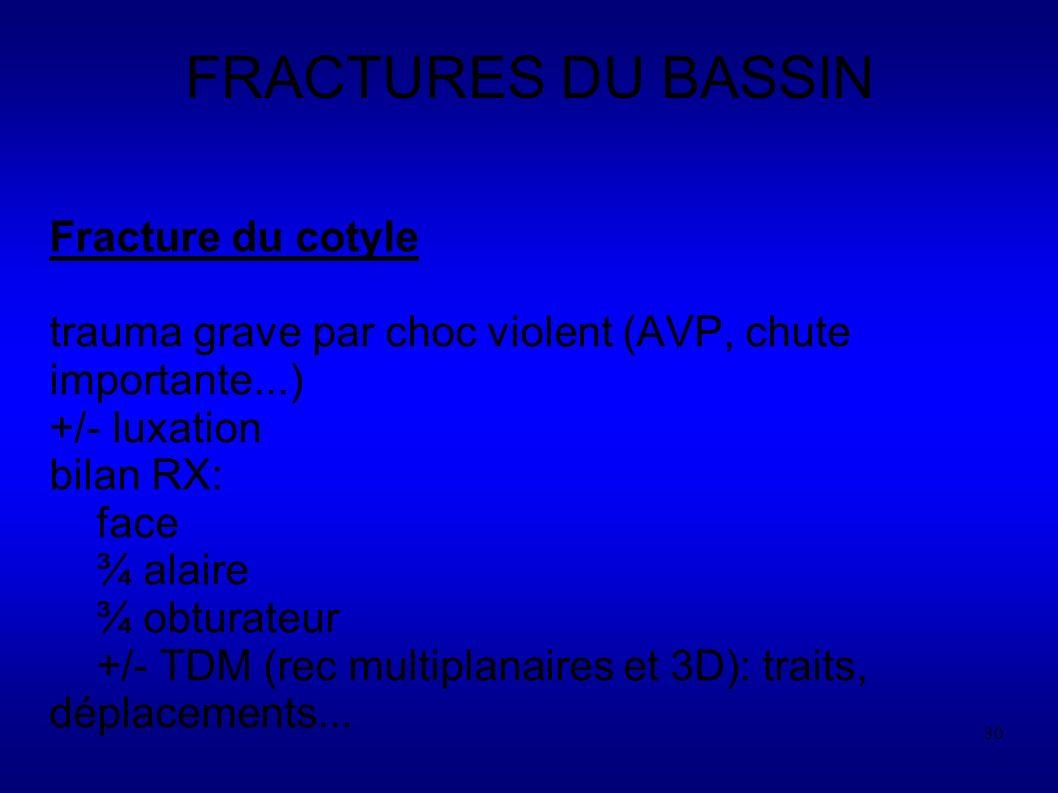 30 FRACTURES DU BASSIN Fracture du cotyle trauma grave par choc violent (AVP, chute importante...) +/- luxation bilan RX: face ¾ alaire ¾ obturateur +/- TDM (rec multiplanaires et 3D): traits, déplacements...
