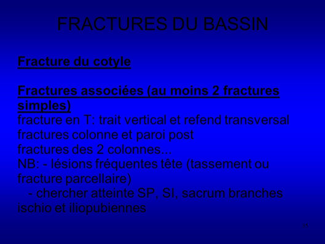 35 FRACTURES DU BASSIN Fracture du cotyle Fractures associées (au moins 2 fractures simples) fracture en T: trait vertical et refend transversal fractures colonne et paroi post fractures des 2 colonnes...