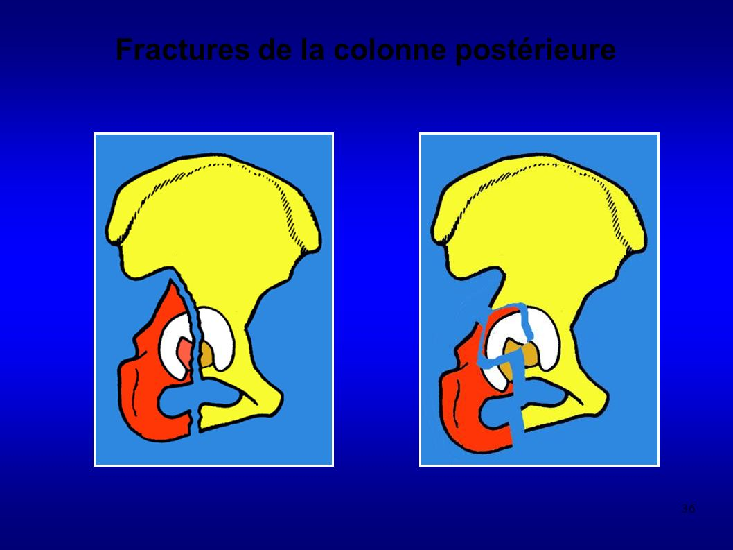 36 Fractures de la colonne postérieure