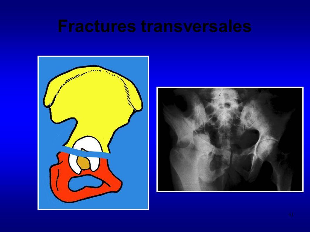 41 Fractures transversales