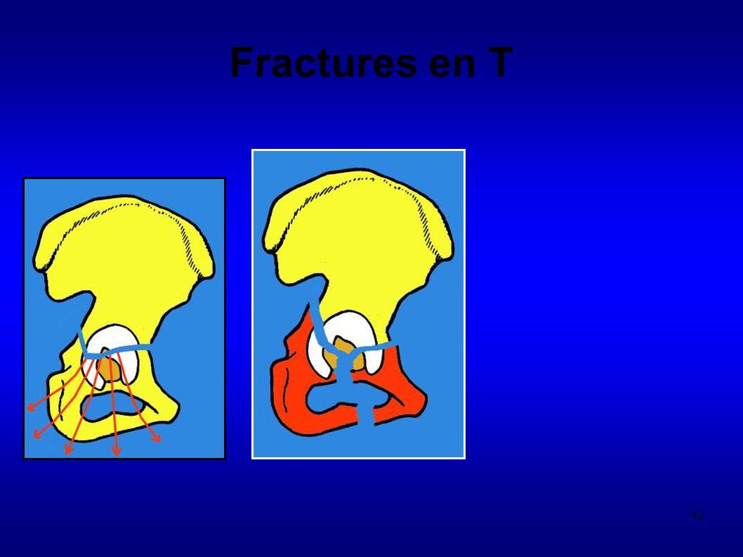 42 Fractures en T