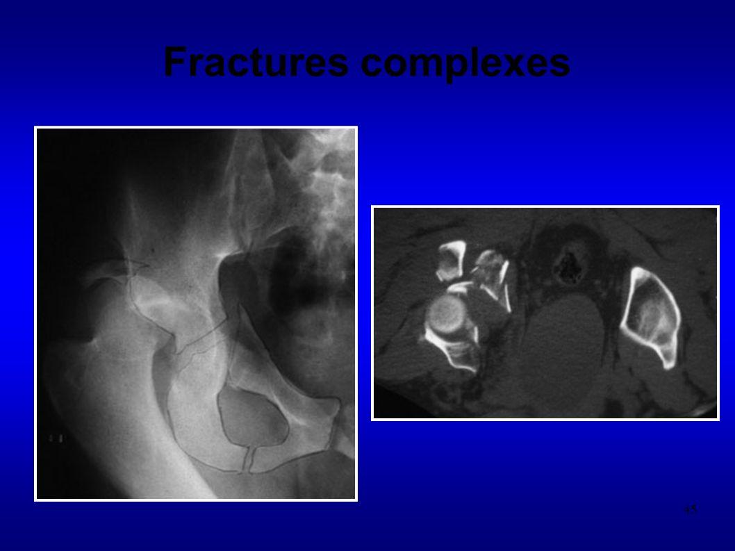 45 Fractures complexes