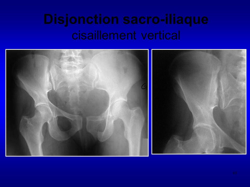 49 Disjonction sacro-iliaque cisaillement vertical