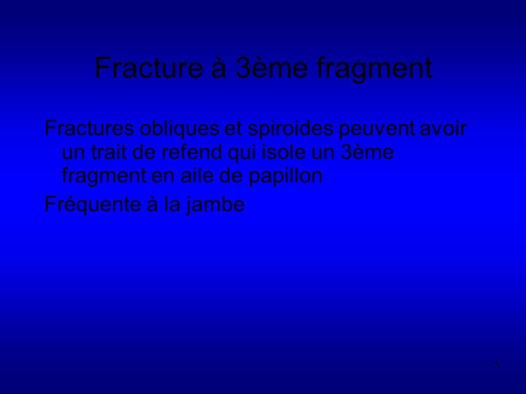 5 Fracture à 3ème fragment Fractures obliques et spiroides peuvent avoir un trait de refend qui isole un 3ème fragment en aile de papillon Fréquente à la jambe
