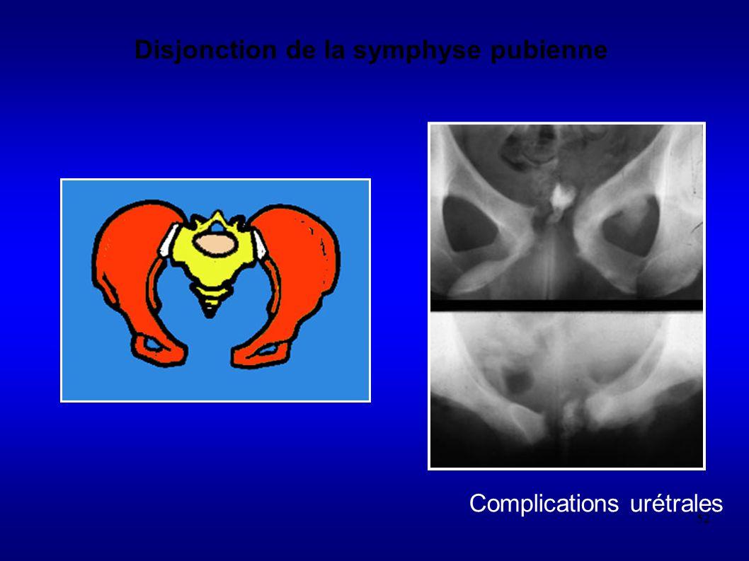 52 Disjonction de la symphyse pubienne Complications urétrales