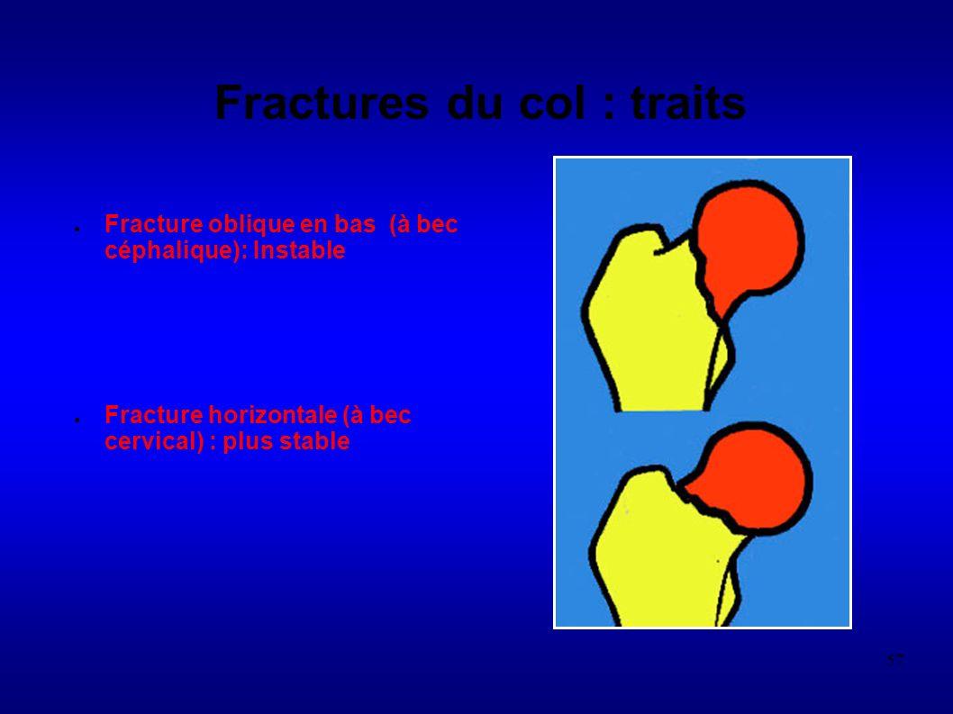 57 Fractures du col : traits Fracture oblique en bas (à bec céphalique): Instable Fracture horizontale (à bec cervical) : plus stable