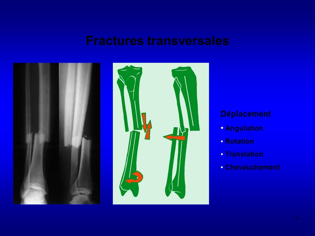 6 Fractures transversales Déplacement Angulation Rotation Translation Chevauchement
