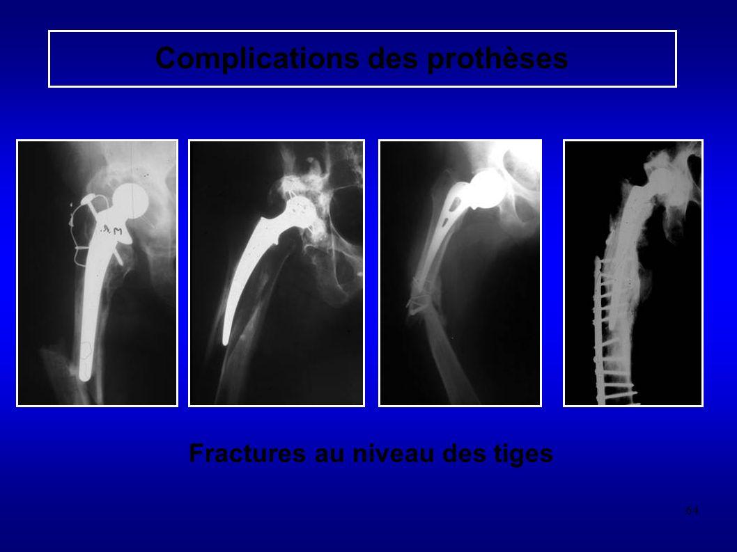 64 Complications des prothèses Fractures au niveau des tiges