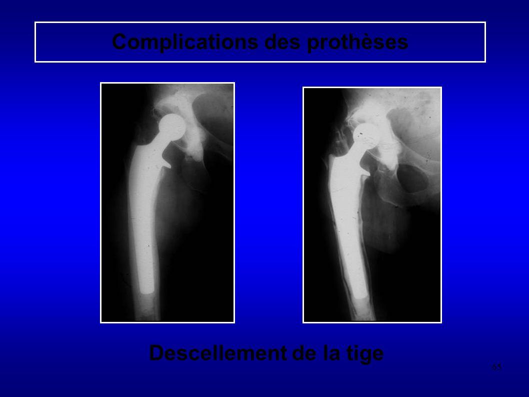 65 Descellement de la tige Complications des prothèses