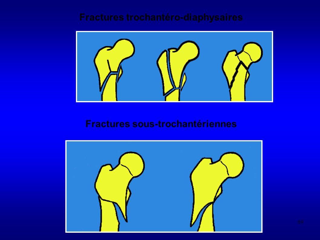 69 Fractures trochantéro-diaphysaires Fractures sous-trochantériennes