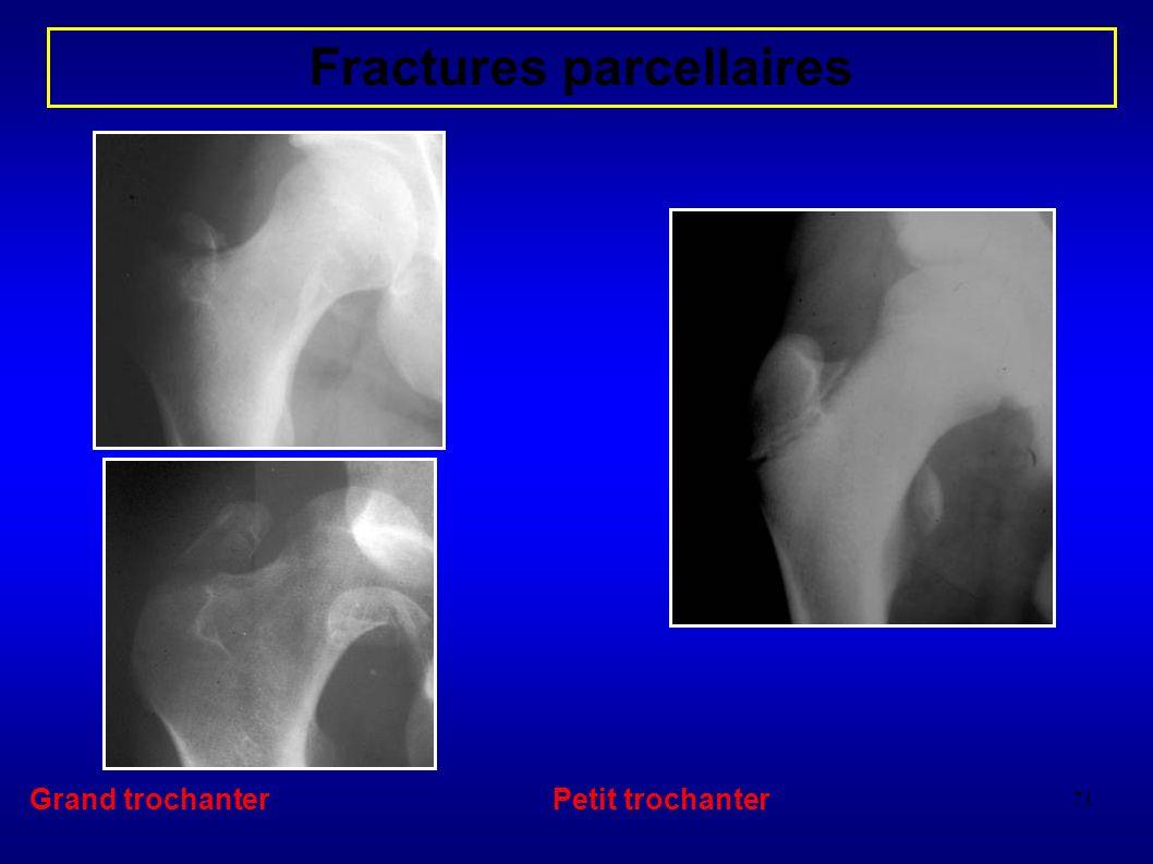 71 Fractures parcellaires Grand trochanterPetit trochanter