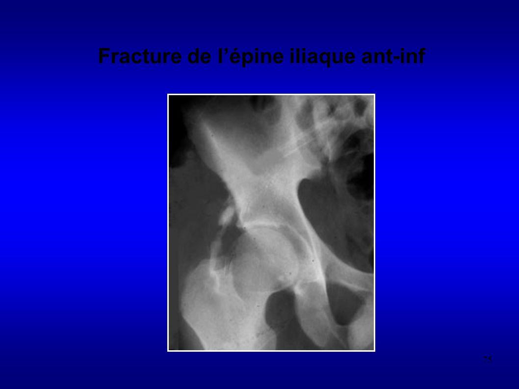 75 Fracture de lépine iliaque ant-inf
