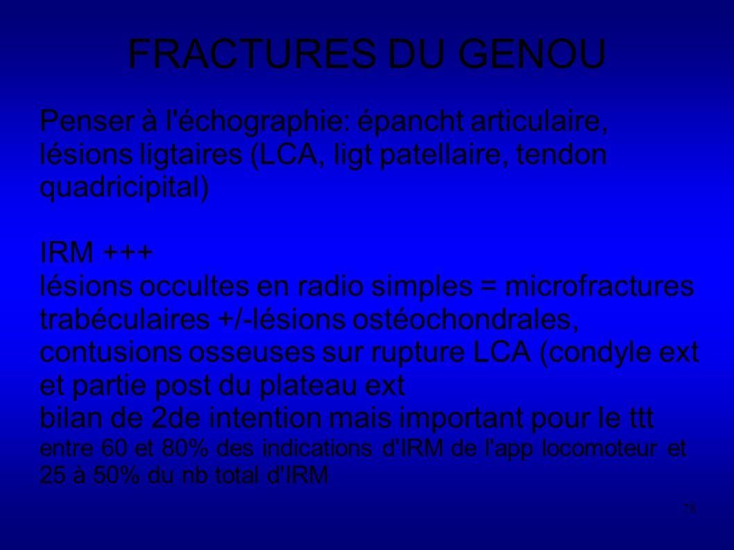 78 FRACTURES DU GENOU Penser à l échographie: épancht articulaire, lésions ligtaires (LCA, ligt patellaire, tendon quadricipital) IRM +++ lésions occultes en radio simples = microfractures trabéculaires +/-lésions ostéochondrales, contusions osseuses sur rupture LCA (condyle ext et partie post du plateau ext bilan de 2de intention mais important pour le ttt entre 60 et 80% des indications d IRM de l app locomoteur et 25 à 50% du nb total d IRM