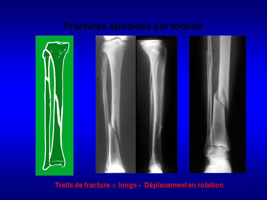 239 LUXATION ANTERIEURE Stigmates osseux de linstabilité Lésions du rebord antéro-inf de la glène - 90% des luxations récidivantes - F, Garth et profil glénoidien (Bernageau) - fracture, pseudarthrose, écoulement (conflit osseux par passage répétitif: simple émousement jusquà aspect en pan coupé) Lésions associées - fracture du tubercule majeur soit par prolongement de lencoche soit par fracture- arrachement tendons supra et infra-épineux