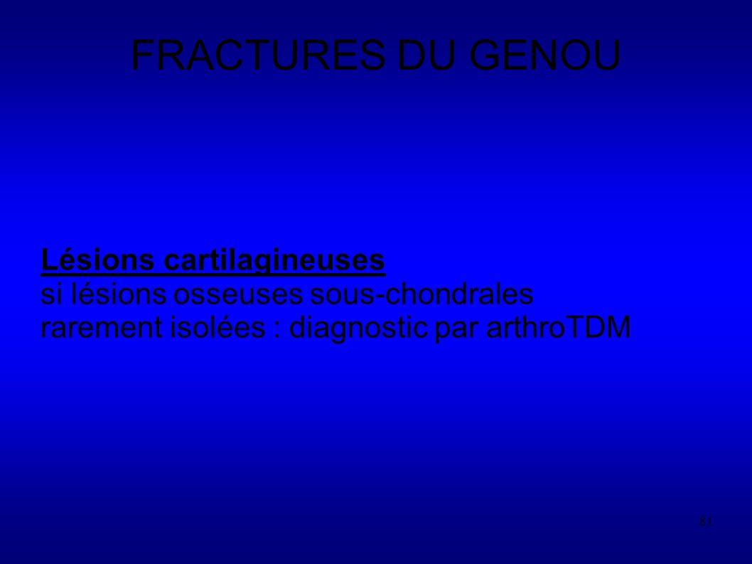 81 FRACTURES DU GENOU Lésions cartilagineuses si lésions osseuses sous-chondrales rarement isolées : diagnostic par arthroTDM