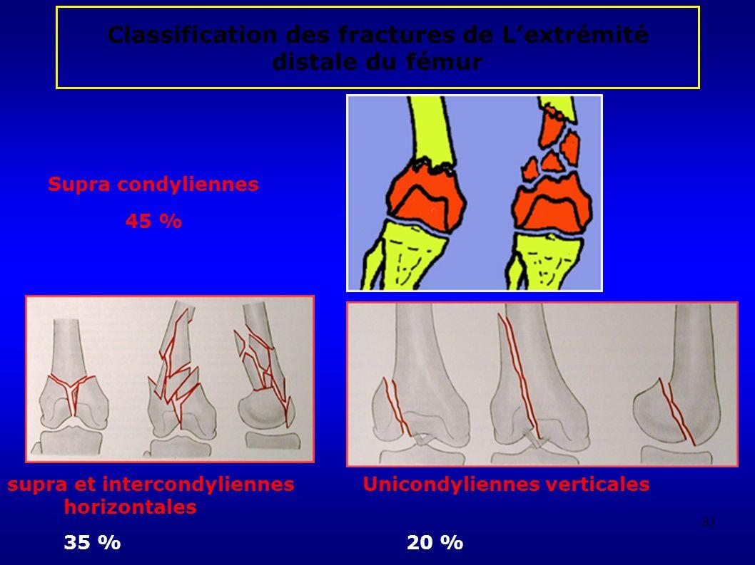 83 Classification des fractures de Lextrémité distale du fémur supra et intercondyliennes Unicondyliennes verticales horizontales 35 %20 % Supra condyliennes 45 %