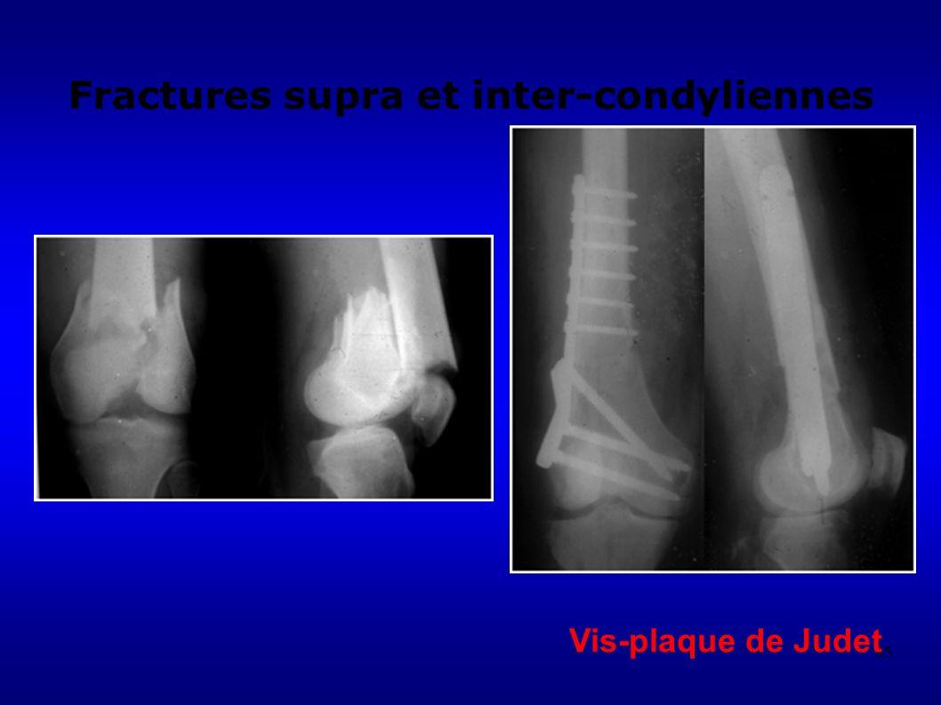 85 Fractures supra et inter-condyliennes Vis-plaque de Judet