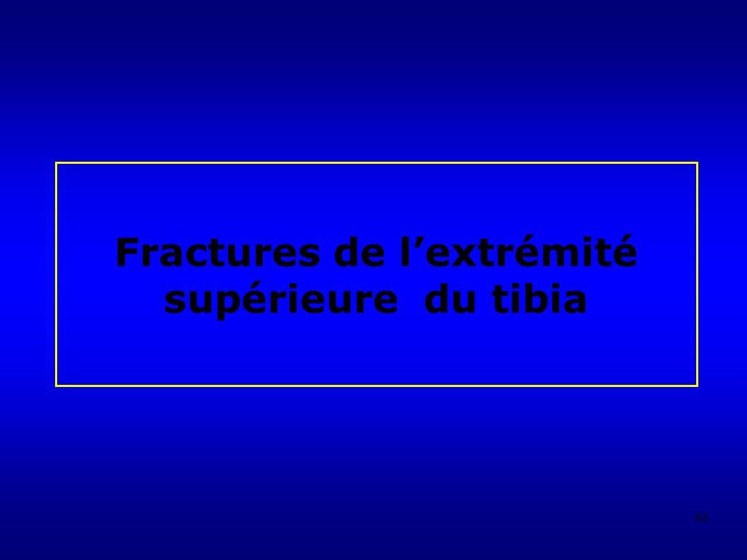 86 Fractures de lextrémité supérieure du tibia