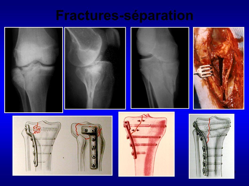 89 Fractures-séparation