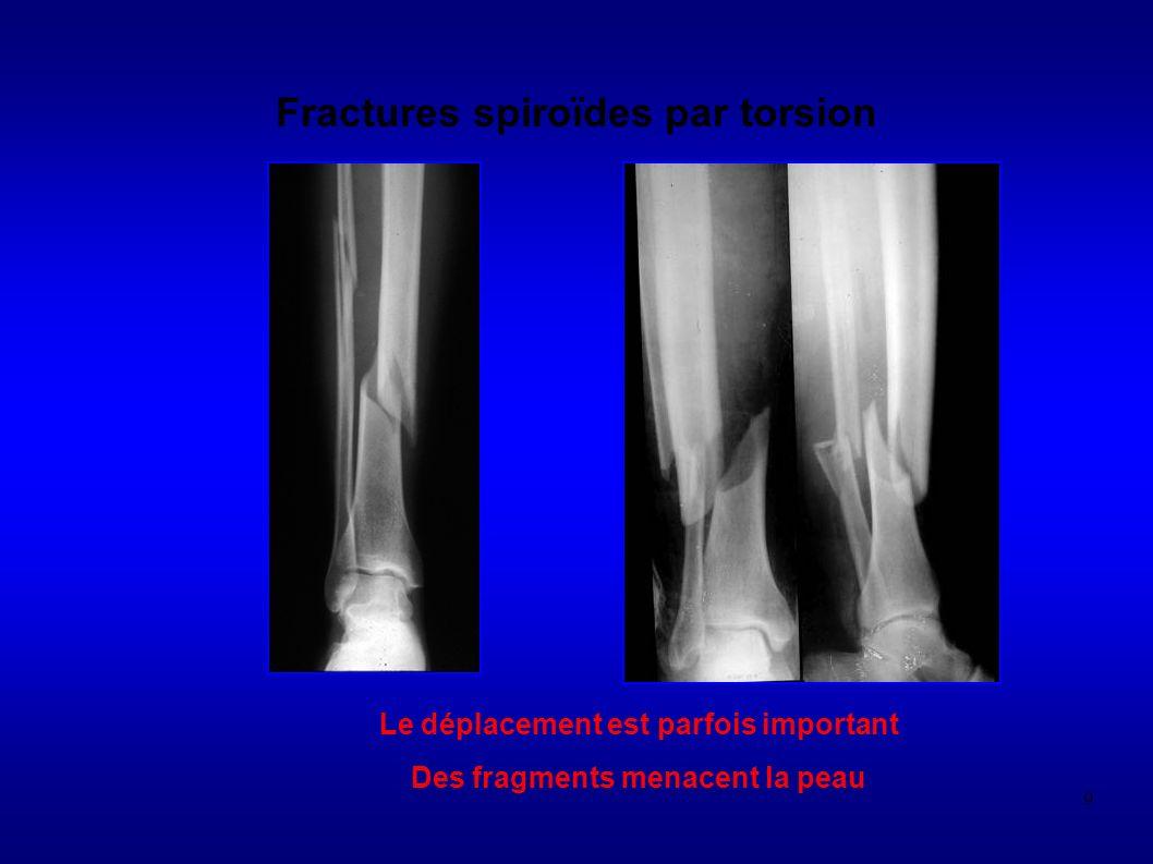 280 FRACTURE DE STRESS OU DE CONTRAINTE fracture de fatigue = os normale mais contrainte mécanique excessive (microtraumatismes) fracture par insuffisanse osseuse = os anormal incapable de résister à stress modéré (ostéoporose, Paget …)