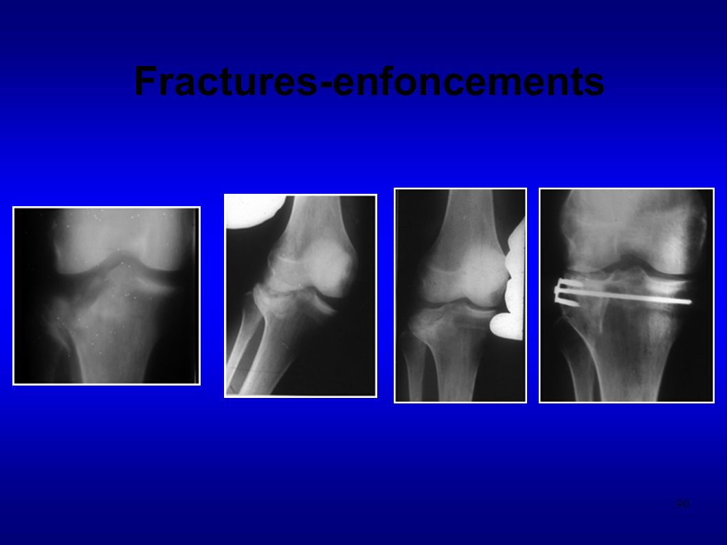90 Fractures-enfoncements
